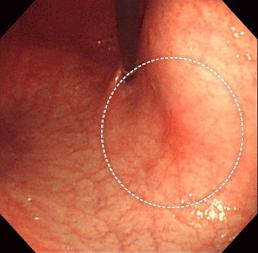 スキルス 胃がん 初期 症状
