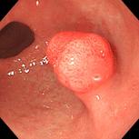 性 過 ポリープ 形成 胃ポリープの症状・原因・治療方法とは?